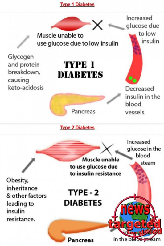 diabetes-type-1-diabetes-vs-type-2-diabetes_52fdbc414cd34_w1500.jpg